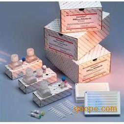 提供EHEC试剂盒检测肠出血性大肠杆菌