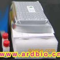 呋喃妥因代谢物快速检测试剂盒