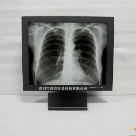 19寸医用黑白高亮液晶正屏监视器1000亮度